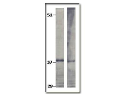 anti TPD52