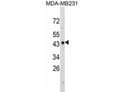 anti NDRG1 (N-term)