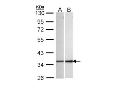 Rabbit Polyclonal ECH1 Antibody
