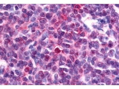 NR4A3 / NOR1 Antibody