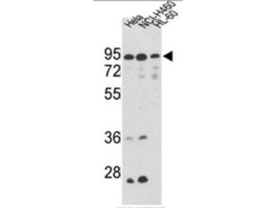anti Mitofilin (Center)
