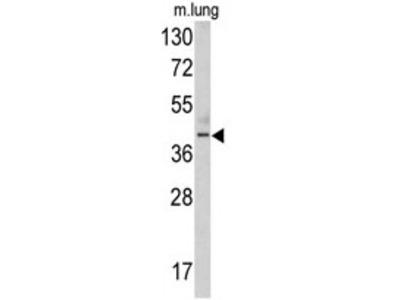 Thymine DNA glycosylase (TDG) (N-term) rabbit polyclonal antibody