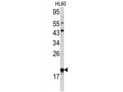 anti ARPC3 / ARC21 (C-term)