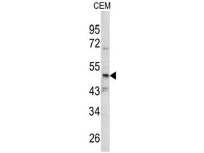 anti SMYD3 (N-term)