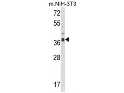 anti ARPC1B / ARC41 (Center)