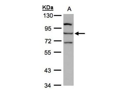 Rabbit Polyclonal ALOXE3 Antibody