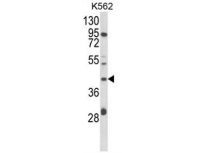 COQ3 rabbit polyclonal antibody