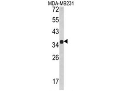 anti MSRB2