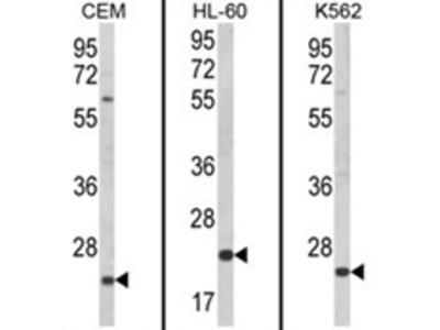 anti KLRC2 / CD159c (N-term)