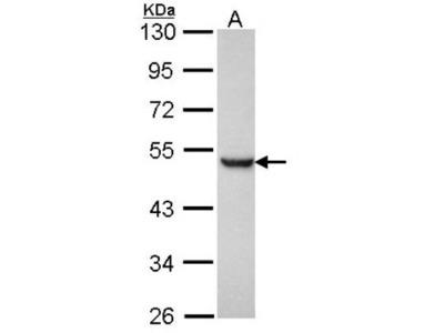 Presenilin-1 Antibody