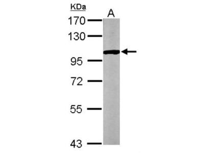 Glycogen Phosphorylase BB / GPBB Antibody
