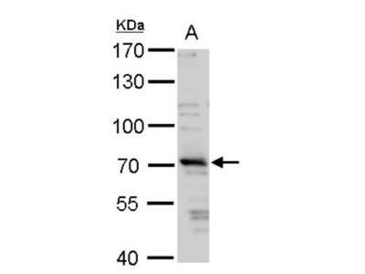 TRIM32 Antibody