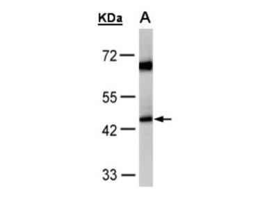 Rabbit Polyclonal ACADM Antibody