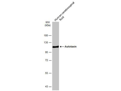 ENPP-2 / Autotaxin Antibody