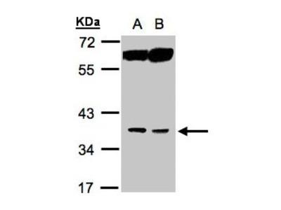Rabbit Polyclonal ACOT8 Antibody
