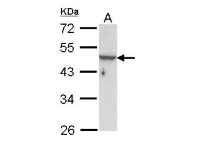 KRTHA3B Antibody
