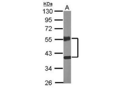 Rabbit Polyclonal COUP-TF II / NR2F2 Antibody