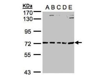 Rabbit Polyclonal ALAS2 Antibody
