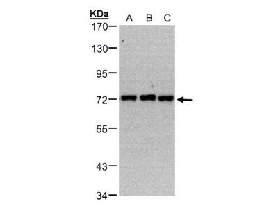 Rabbit Polyclonal PIP5K1C Antibody