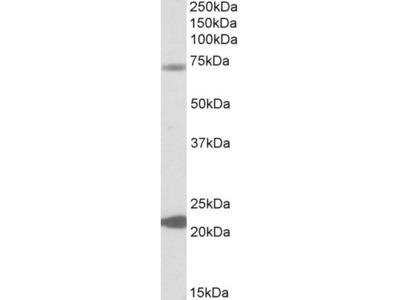 Goat Polyclonal KCNN2 Antibody