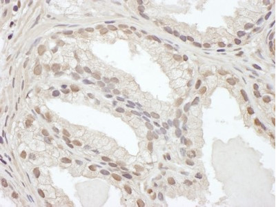 CEBP Beta Antibody