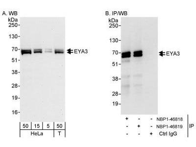 Rabbit Polyclonal EYA3 Antibody
