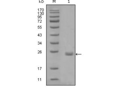 Mouse Monoclonal Axl Antibody