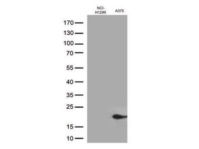 Mouse Monoclonal CTAG1B Antibody