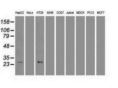 Mouse Monoclonal HHEX Antibody