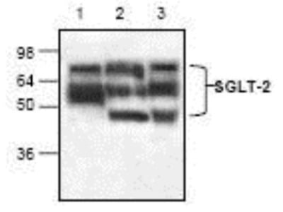 SGLT2 / SLC5A2 Antibody