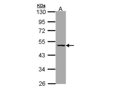 Serpin A7 / TBG Antibody