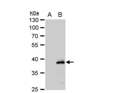 Chitinase 3-like 2 Antibody