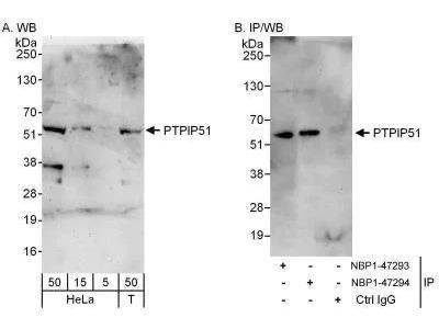 PTPIP51 Antibody