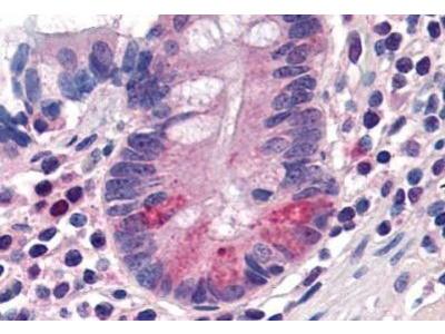 PEPT1 / SLC15A1 Antibody