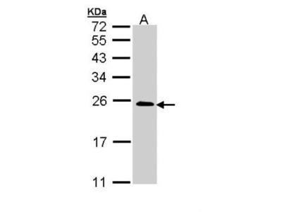TC21 / R-Ras2 Antibody