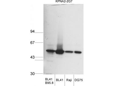 KPNA2 Antibody [2G7]