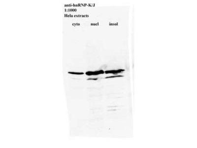 Anti-hnRNP K antibody [3C2] - ChIP Grade