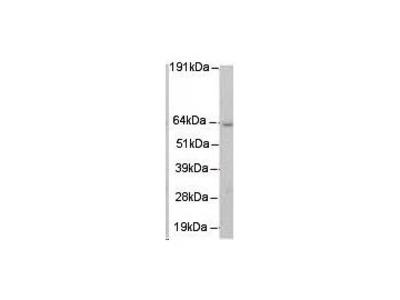 Mus81 Antibody [MTA30 2G10/3]