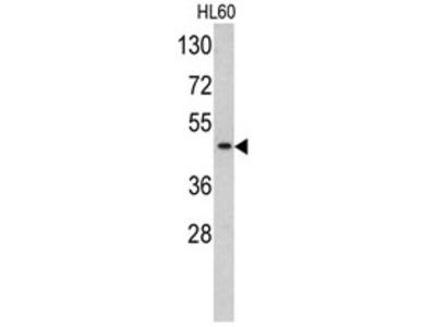 anti TBP (TATA-box-binding protein) (C-term)
