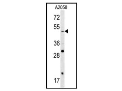 SOX4 Antibody