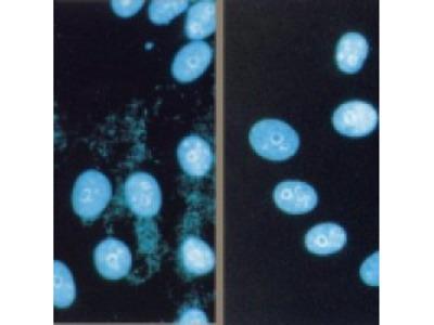 MYCOPLASMA REMOVAL AGENT From Bio Rad Formerly AbD Serotec