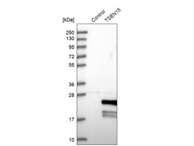 Anti-TSEN15 Antibody