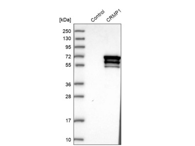 Anti-CRMP1 Antibody