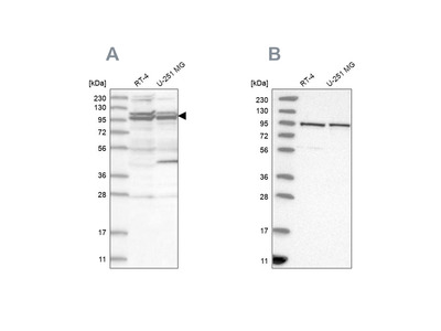 Anti-TBC1D5 Antibody