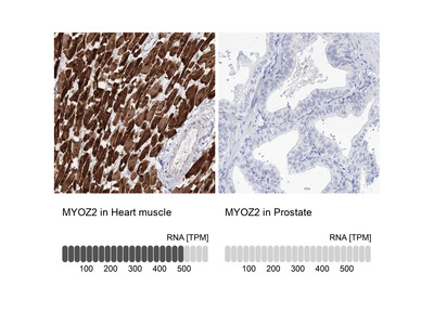 Anti-MYOZ2 Antibody