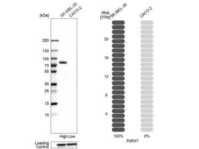 Anti-P2RX7 Antibody
