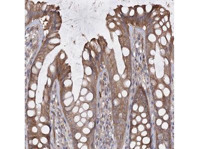 Anti-RIN2 Antibody