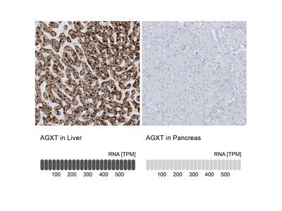 Anti-AGXT Antibody