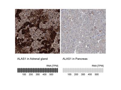 Anti-ALAS1 Antibody