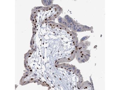 Anti-FAM206A Antibody